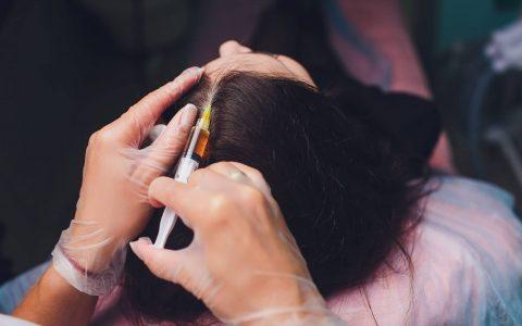 prp hair treatment malaysia
