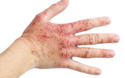 eczema Malaysia