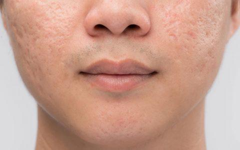 acne scar treatment malaysia