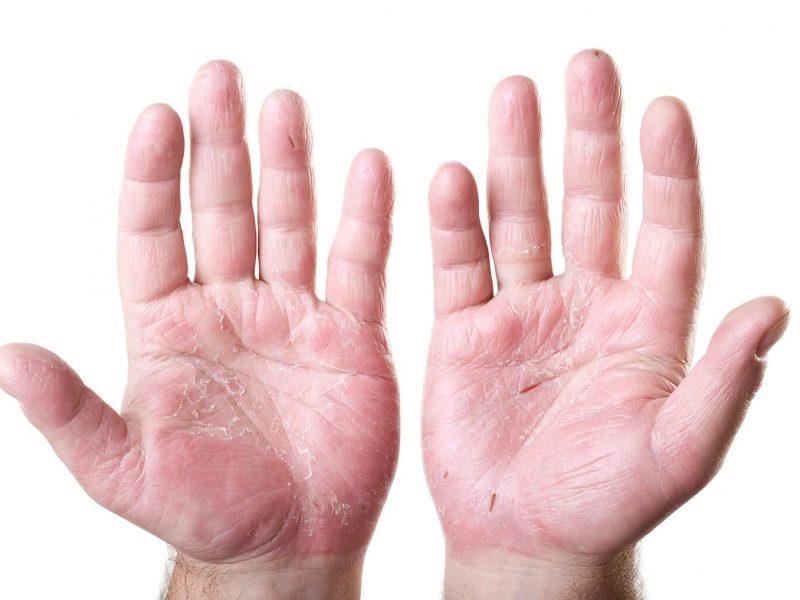 hand ezcema